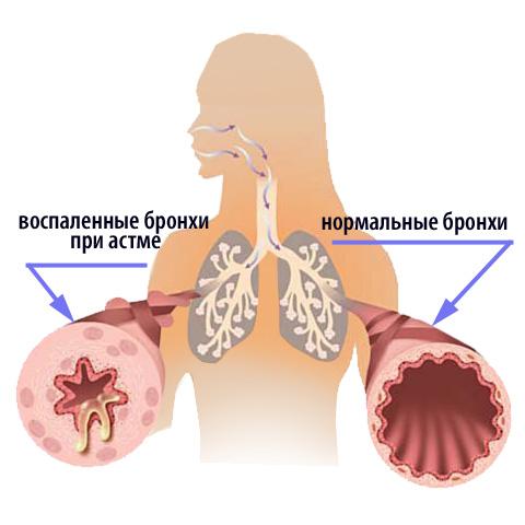 На фото показаны бронхи астматика и здорового человека.