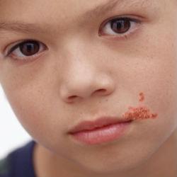 При стрептодермии кожи банные процедуры запрещены.