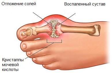 Баня и подагра: можно ли принимать банные процедуры про болезни ...